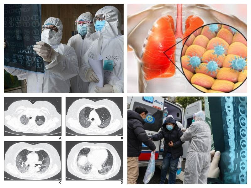 Koronavirus - napredovanje bolezni
