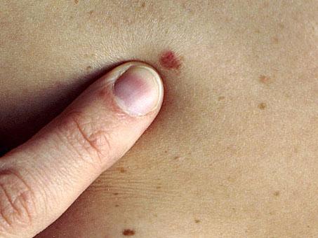 Kožni rak