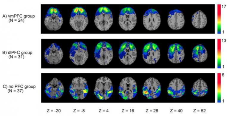 Skeni možganov