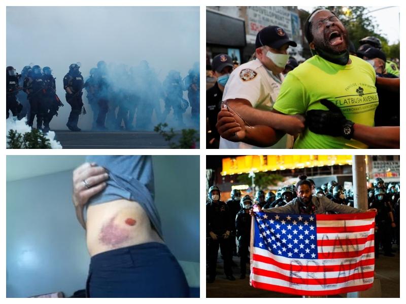Antirasisti v ZDA