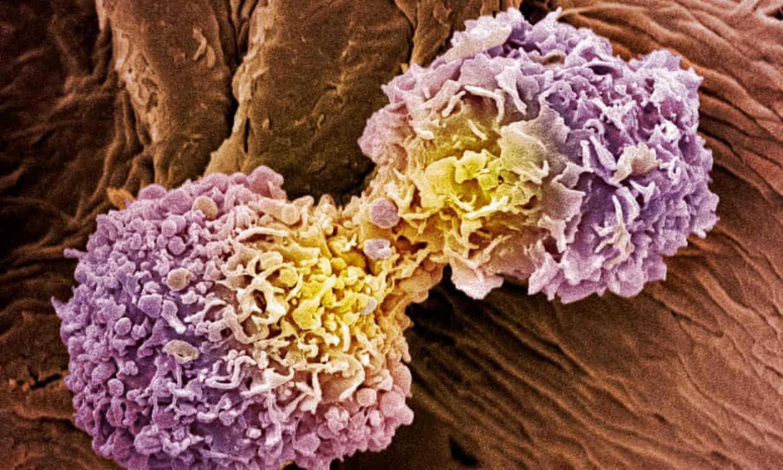 Rakasta celica - rak na dojkah Vir: Univerza Quensland