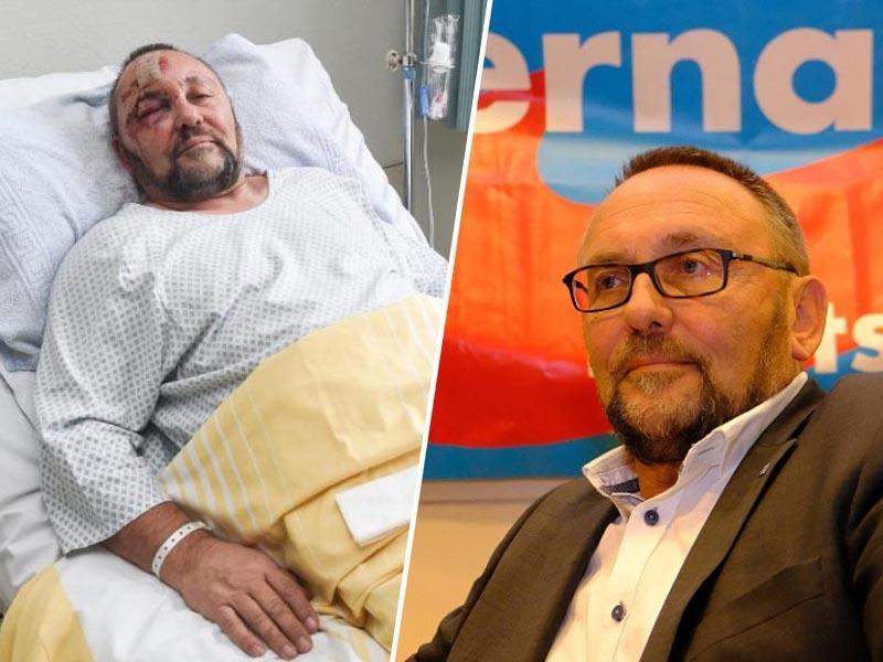 Nepričakovan preobrat: policija ugotovila, da je desničarski politik lagal, da so ga pretepli