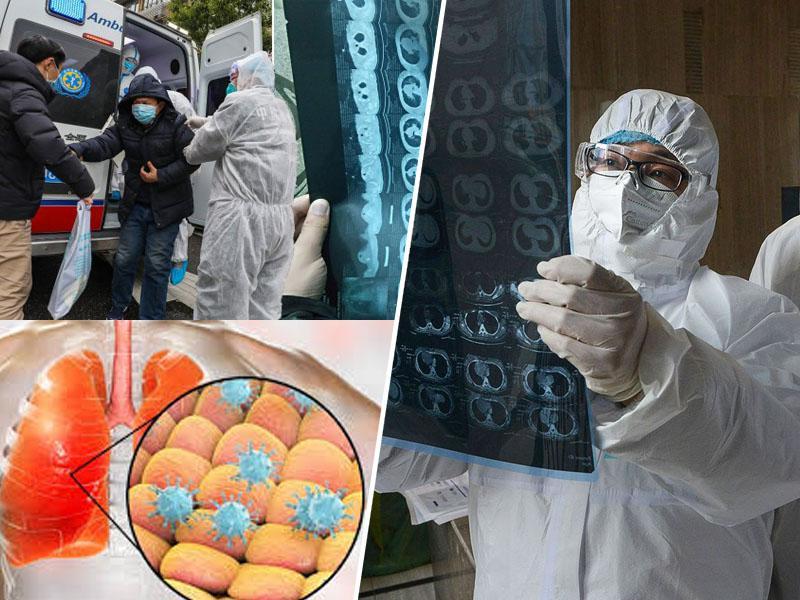 Kako ubija koronavirus: »Prehod z blage oblike v hudo lahko nastopi zelo hitro«