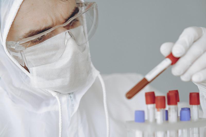 Raziskava: na posledice okužbe s koronavirusom lahko zelo vpliva tudi vaša krvna skupina