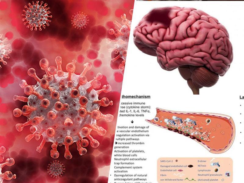 Presenetljivo spoznanje ameriških zdravnikov: Novi koronavirus ni respiratorna infekcija, pač pa bolezen ožilja