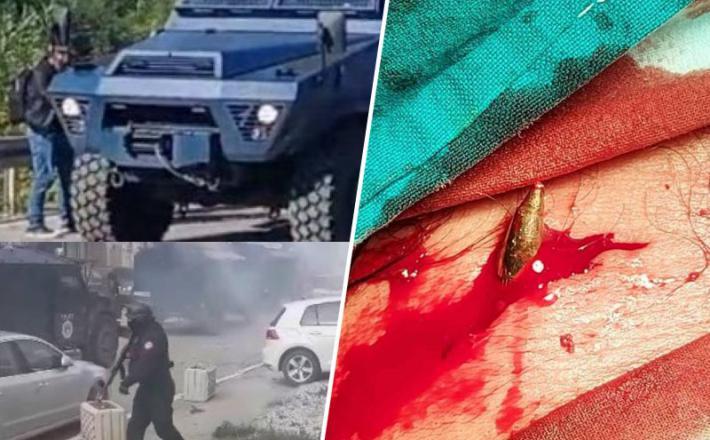Albanska Kosovska policija in ranjeni demonstrant Vir: Twitter