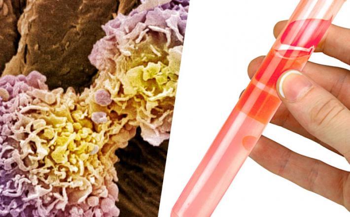 rak - diagnoza z delčki zlata