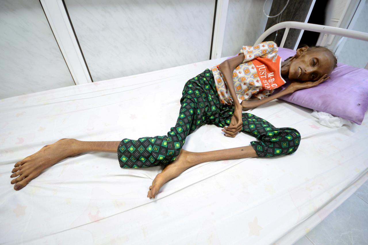 V Jemnu je med prebivalci izjemna lakota in neštete bolezni, foto: REUTERS/Abduljabbar Zeyad