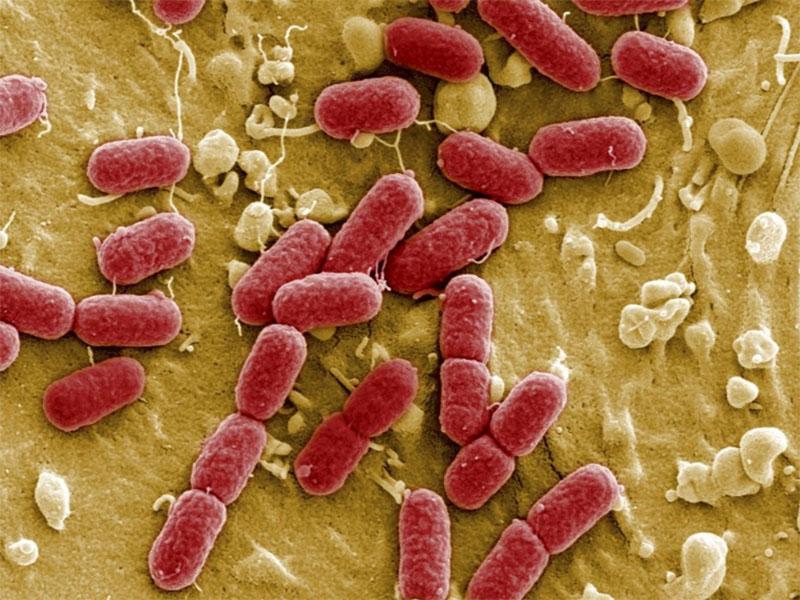 Superbakterija