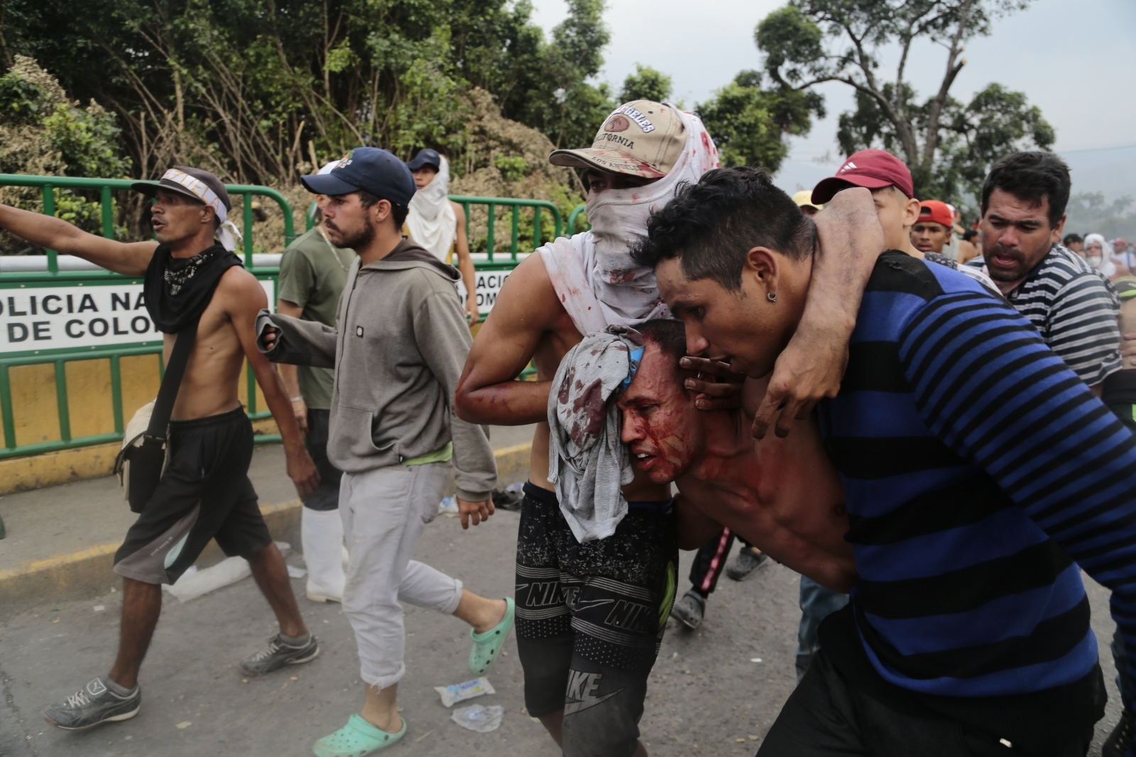 Ranjeni ob dostavi pomoči - Venezuela Vir:Pixsell